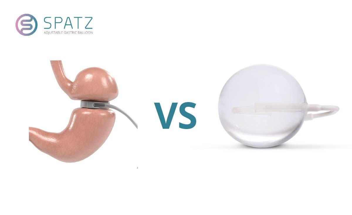 Gastric Band vs. Gastric Balloon